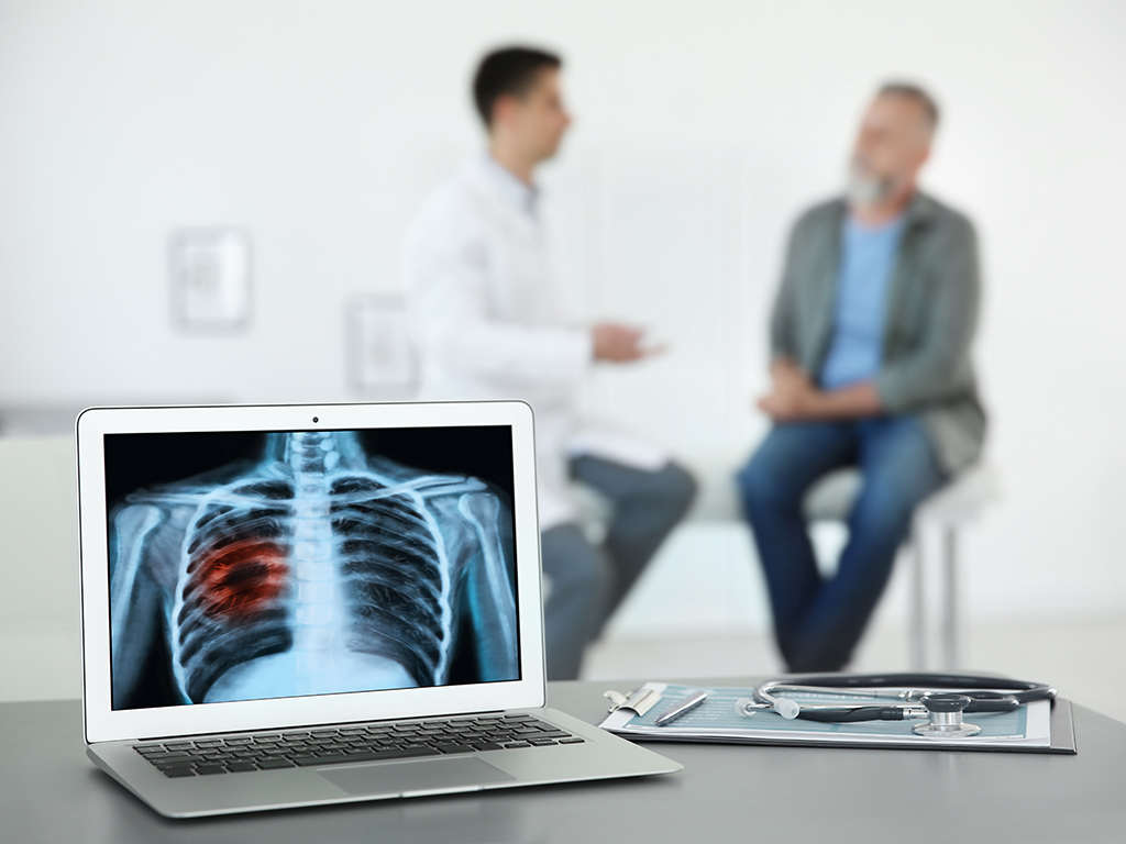 Optimizing Lung Cancer Screening